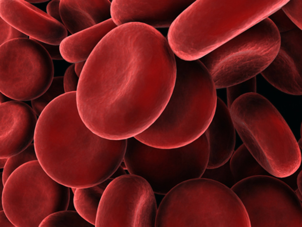Point-of-care hemoglobin testing: Methods and relevance to
